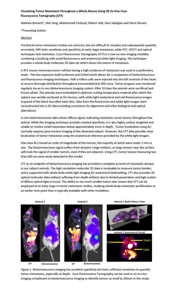 POSTER-WMIC-2017-Visualizing-Tumor